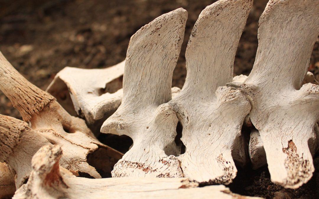 Consecuencias de la descalcificación de los huesos