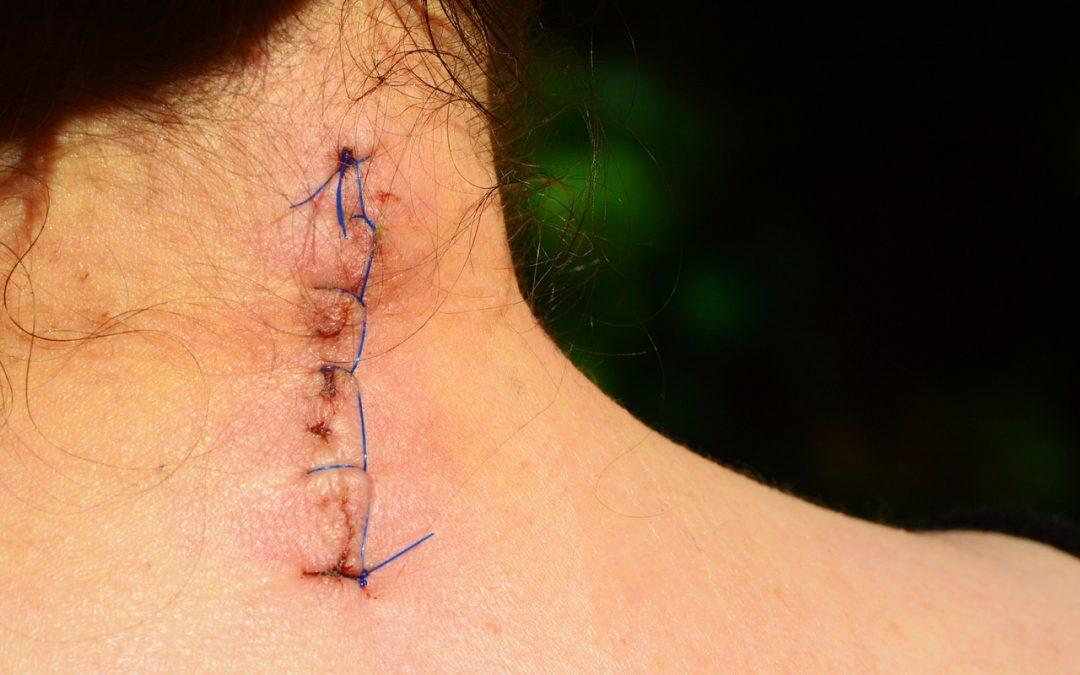 Cicatrización de Diferentes Tejidos con Fisioterapia