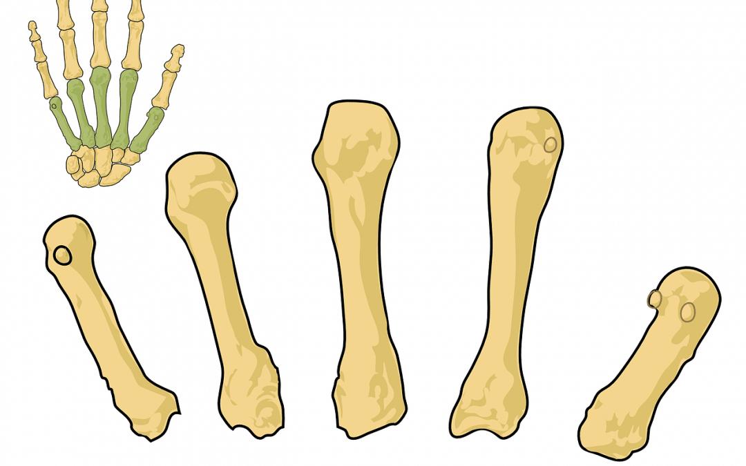 Principales riesgos de padecer Osteoporosis